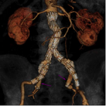 MSC publishes meta-analysis on EVAR and renal complications in Journal of Vascular Surgery
